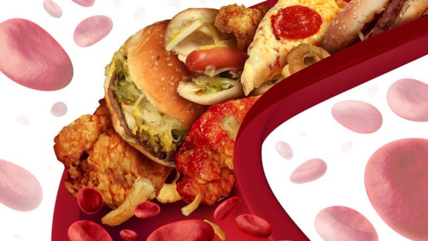 Los peores alimentos para el colesterol
