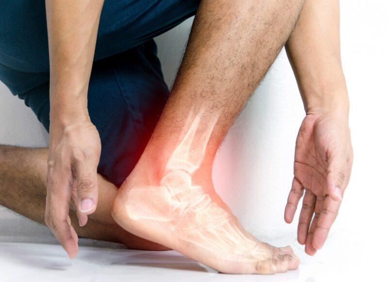 Cómo recuperarse de un esguince de tobillo