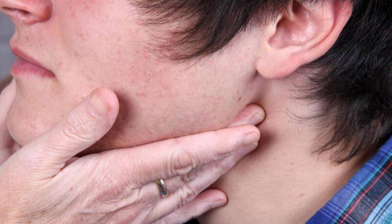 Consejos para reducir la inflamación