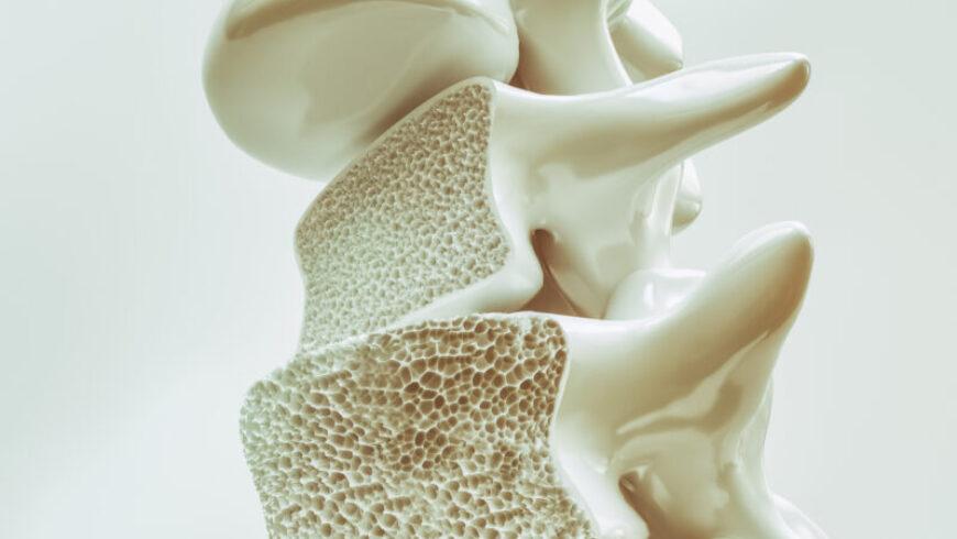 Osteoporosis: consejos para proteger los huesos